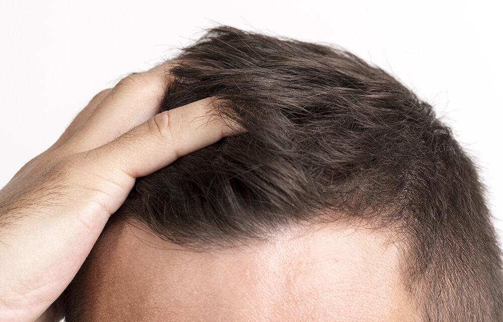Caduta dei capelli estiva – cosa fare?