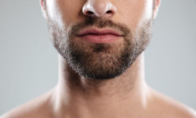 Trapianto di barba